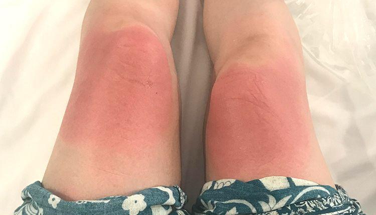 日焼け直後の足