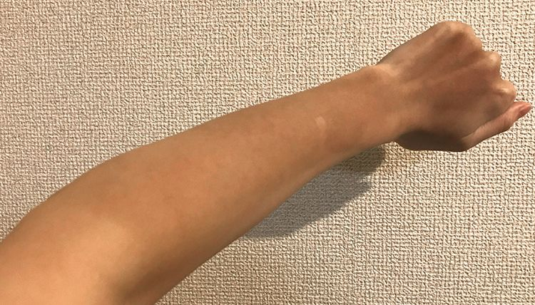 日焼けした左腕