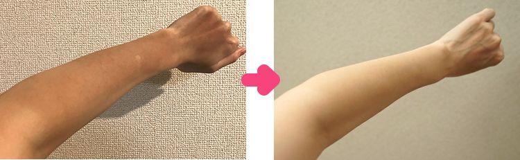 日焼け左腕の比較