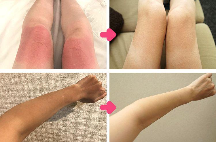 やってしまった…日焼け後の腕や足が痛い(涙)元に戻すためにした私の徹底ケア【画像有】