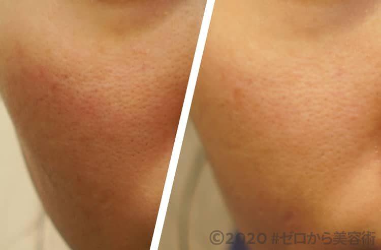 肌湿疹・皮膚炎